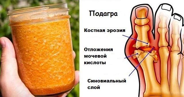 artrit-i-podagra-boyatsya-etogo-sredstva-kak-ognya-7658892