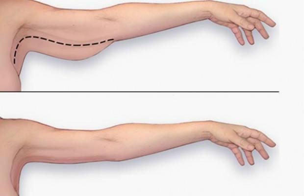 prevent-flabby-arms-7681234